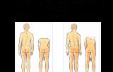 Anomalie di curvatura su piano frontale